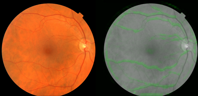Google develops AI retina image scan